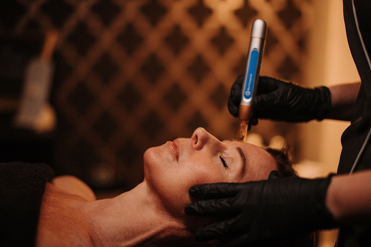 Microneedling Anti-Aging Scar Reduction Treatment Sussex